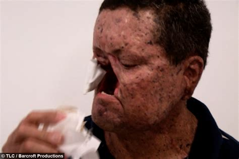 Life In The Shadows: The Brazilian Village Allergic To