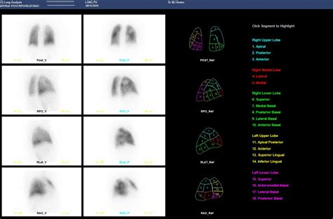 Radioisotope Lung Scan Cape Town | Dr Ria Bester